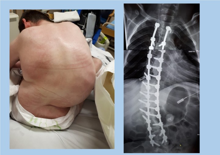 1 year after spinal fusion collage